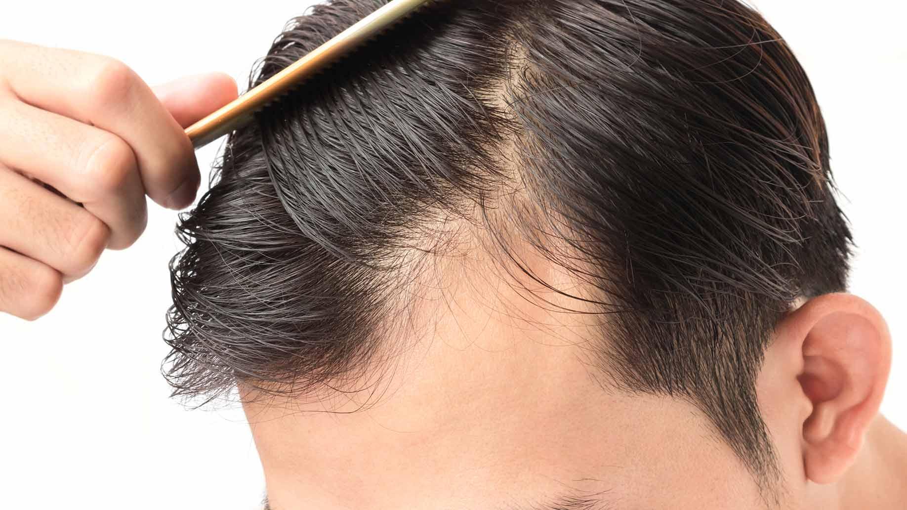 cortes de cabelo masculinos